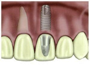 dental-implant (1)