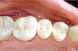 mercury-free-fillings