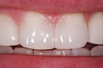 After photo of a a tooth gap that treated with Bioclear, available from La Jolla dentist Dr. Stephen Doan.