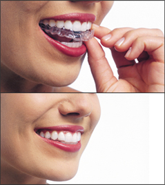 A woman placing her Invisalign aligners on her teeth in two images